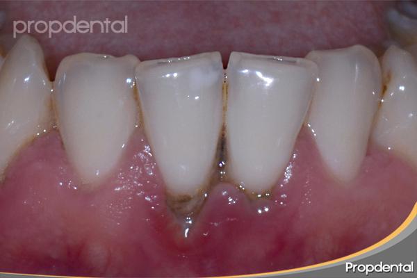 preguntas frecuentes sobre placa dental bacteriana