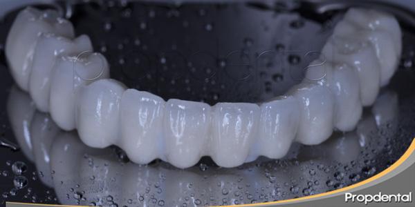 prótesis sobre implantes dentales