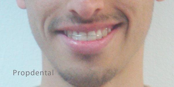 retenedor de ortodoncia Barcelona