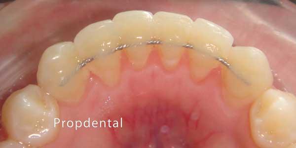 retenedor fijo de ortodoncia