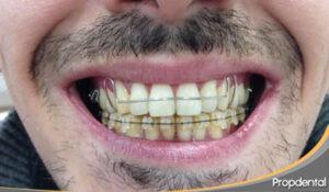 retenedor removible de ortodoncia