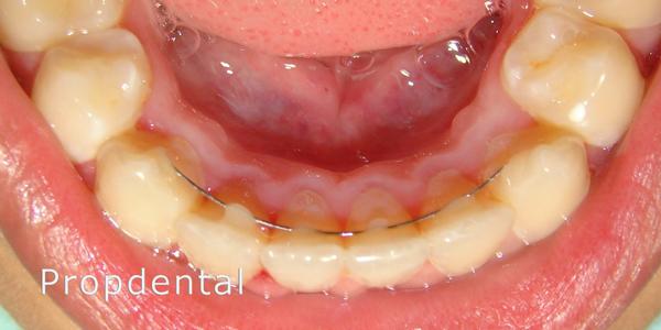 retenedores fijos de ortodoncia