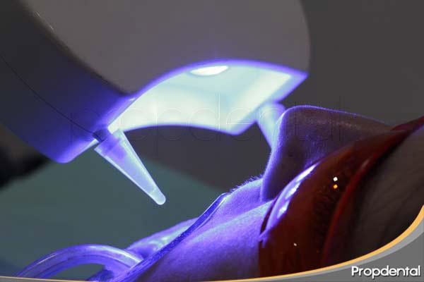 tipos de blanqueamientos dentales