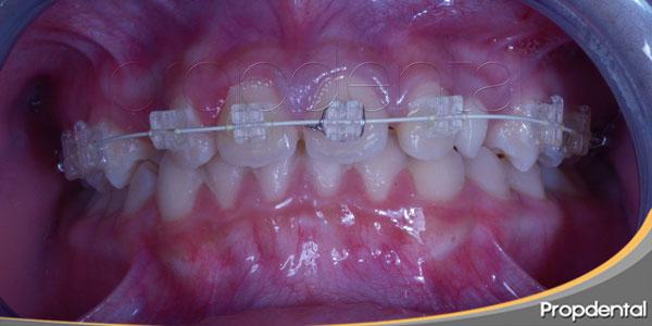 tratamiento de ortodoncia en niños