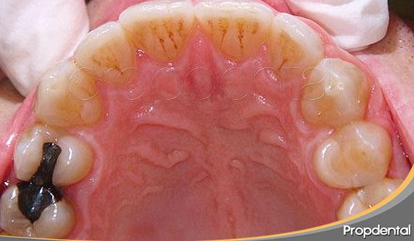 tratamiento de ortodoncia finalizado