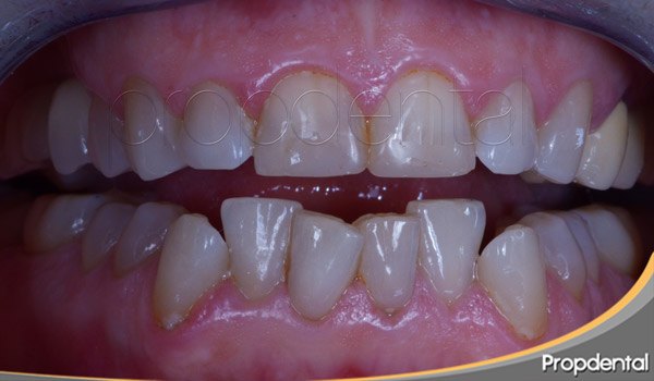 tratamiento del bruxismo dental
