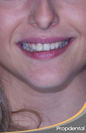 tratamiento dientes supernumerarios