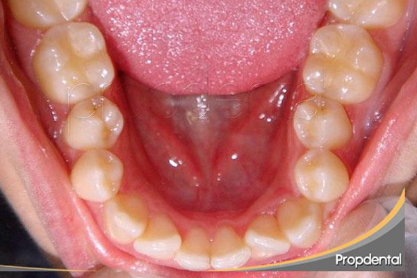 tratamiento de ortodoncia para incisivos inferiores apiñados