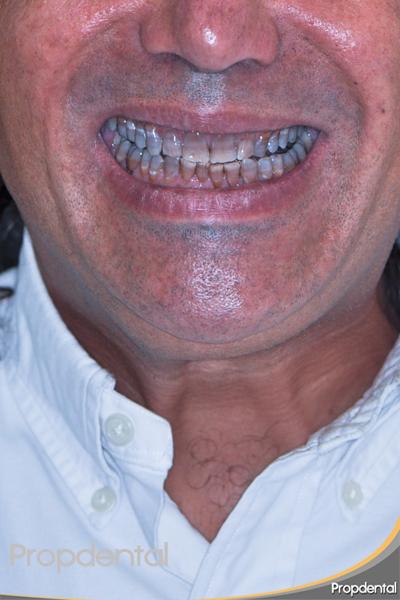 Paciente machas tetraciclinas