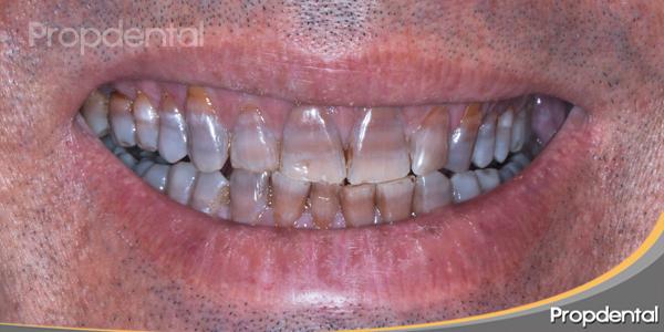 aspecto de la sonrisa y de los dientes en la boca antes de tratarse
