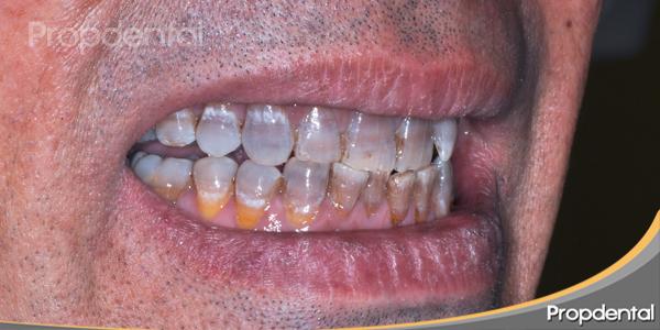 dientes gravemente teñidos