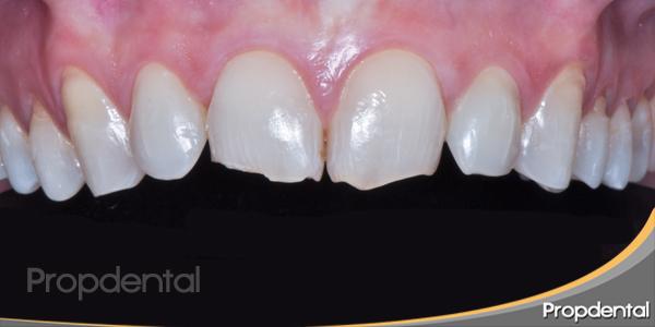 dientes antes del tratamiento de estética dental