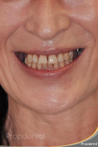 antes del tratamiento de implantología