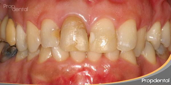 antes del tratamiento estética dental