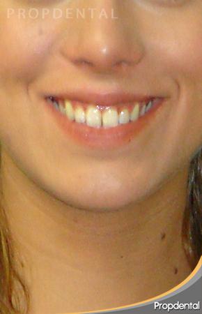 Miss España antes del tratamiento de ortodoncia invisible