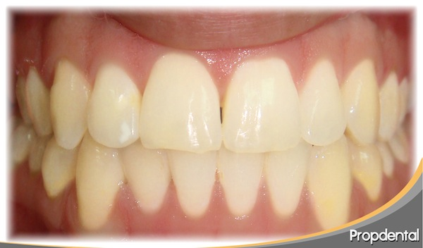 apinamiento-invisalign-final