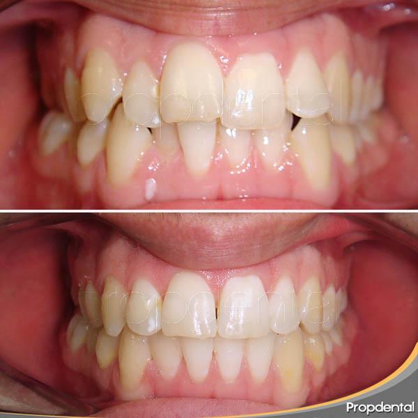 tratamiento del apiñamiento dental