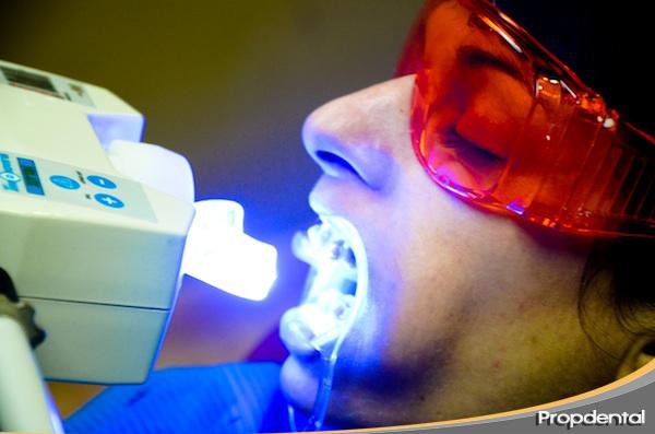 blanqueamiento en la clinica dental