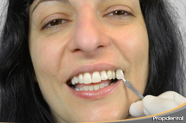 dientes blaqueados varios tonos