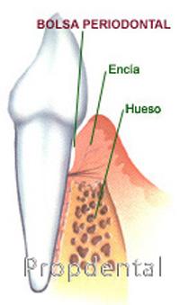 ¿Que es la bolsa periodontal?