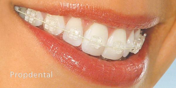 brackets cerámicos para la ortodoncia estética