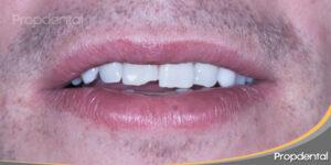 diente oscurecido por el trauma y fracturado