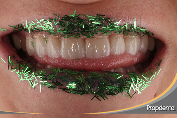 Evolución de la estética dental Barcelona