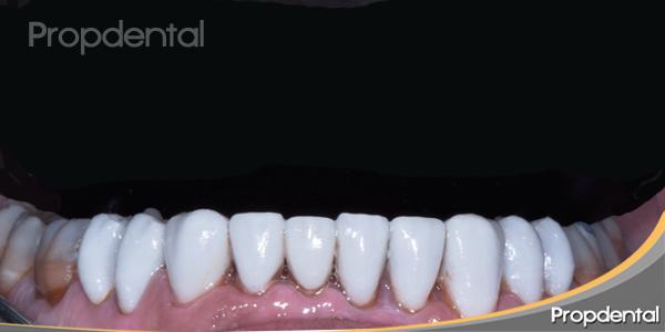 carillas de porcelana en los dientes inferior