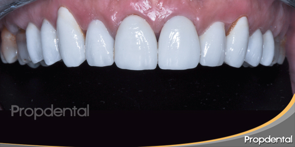 carillas de porcelana en los dientes superiores