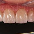 carillas sin tallado dental barcelona