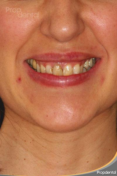 caso clínico de carillas dentales