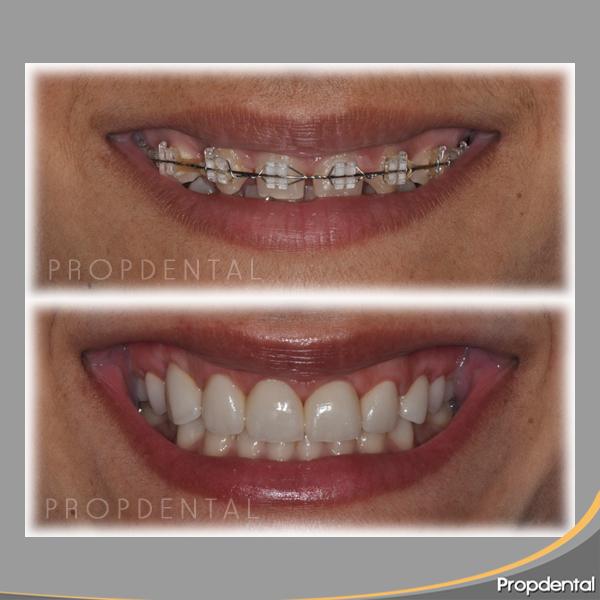 Precio coronas dentales de circonio