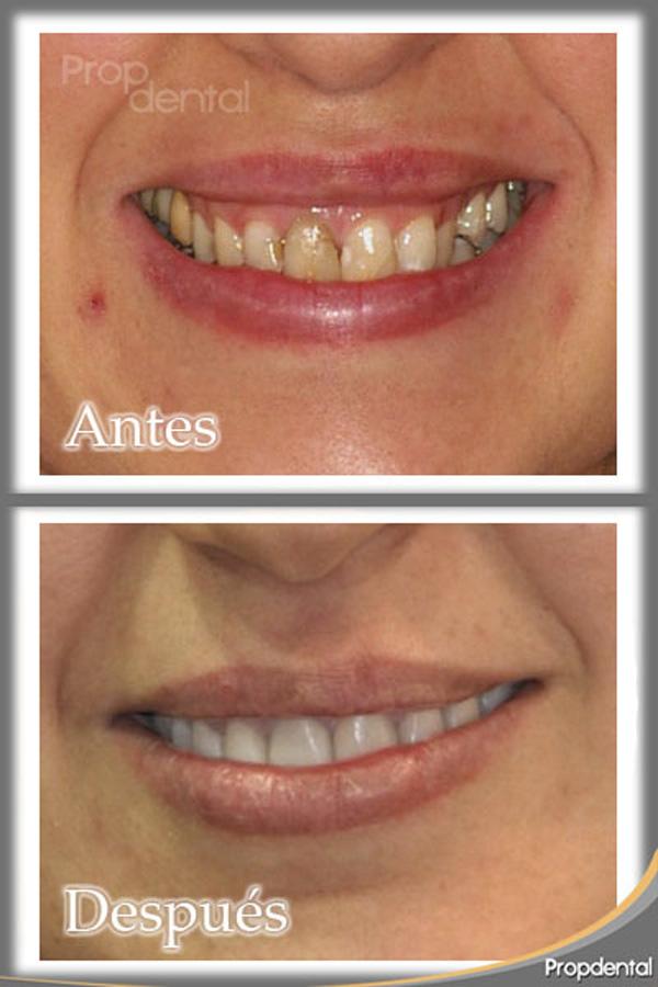 caso clínico carillas dentales