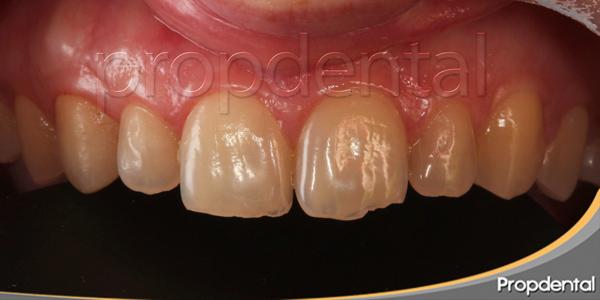 caso de carillas dentales en Barcelona