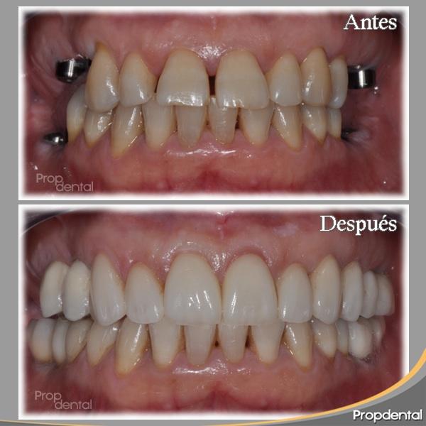 caso de implantes dentales en el sector posterior del maxilar