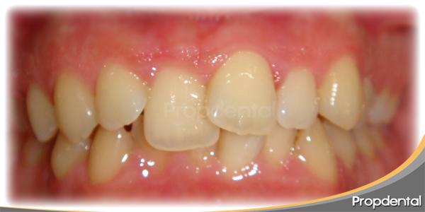 dientes mal posicionados