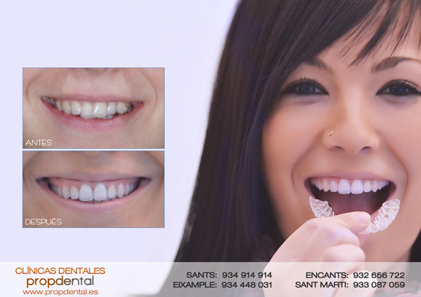 caso ortodoncia invisible propdental