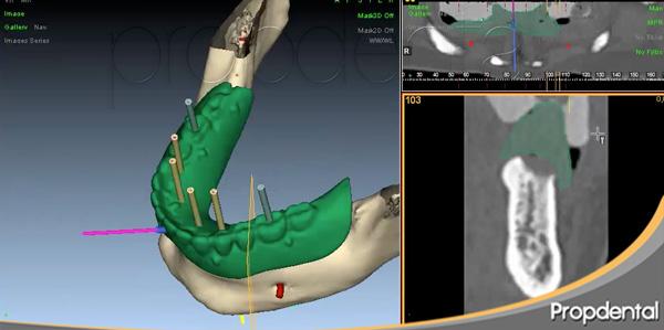 cirugía guiada para implantes dentales