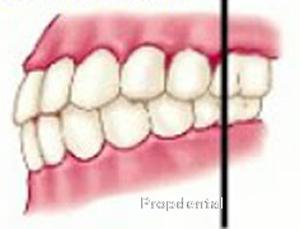 clasificación de angle de ortodoncia