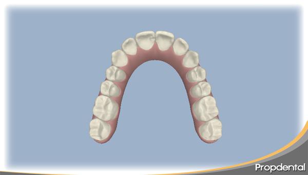 planificación del tratamiento de ortodoncia con invisalign y visualización del resultado antes de empezar