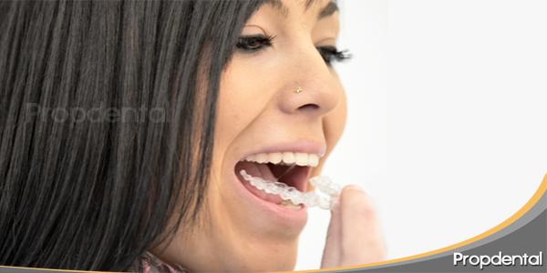 Casos invisalign testimonio y casos de ortodoncia invisible - Como alinear los dientes en casa sin brackets ...