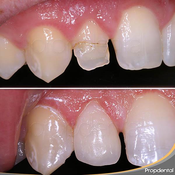 corona dental antes y después
