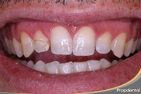 diente del frente estético anterior fracturado