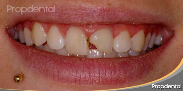 diente roto o paleta fracturada