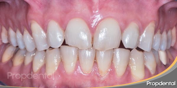 dientes dañados antes del diseño de la sonrisa