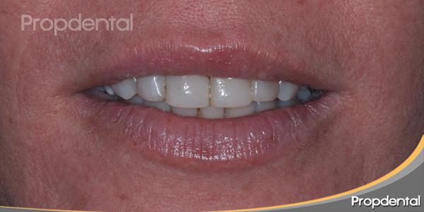 dientes en reposos antes