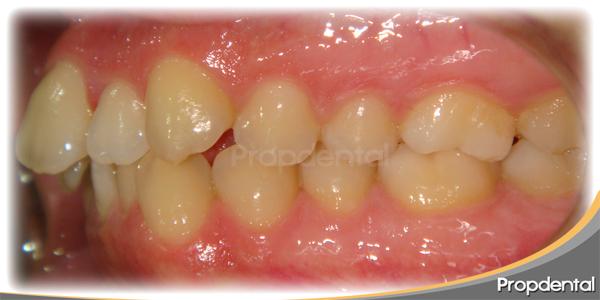 dientes montados o apiñamiento dental