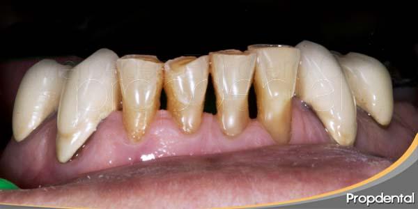 dientes separados antes de reconstrucciones de composite