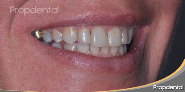 dientes sin brillo