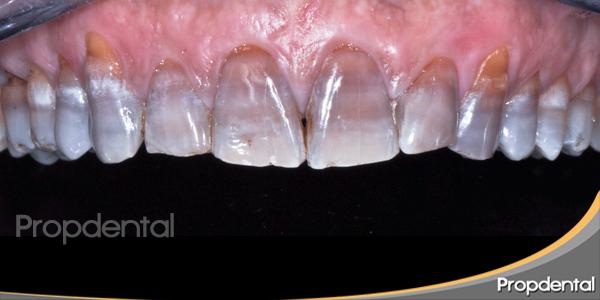 dientes tetraciclinicos